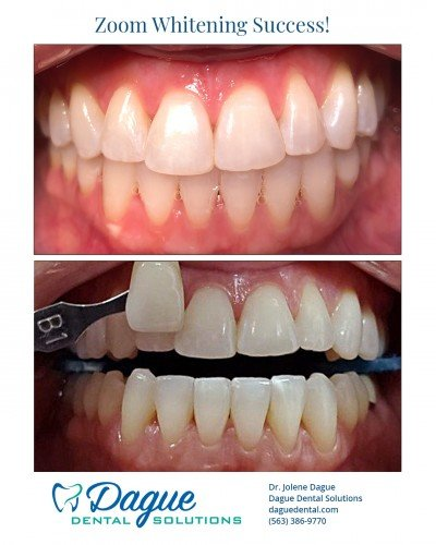 zoom teeth whitening- Davenport IA - Dague Dental Solutions 1