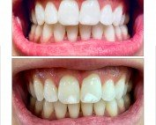 zoom teeth whitening- Davenport IA - Dague Dental Solutions 2