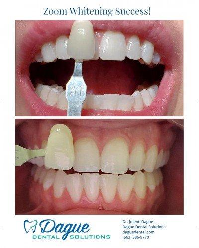 zoom teeth whitening- Davenport IA - Dague Dental Solutions 3